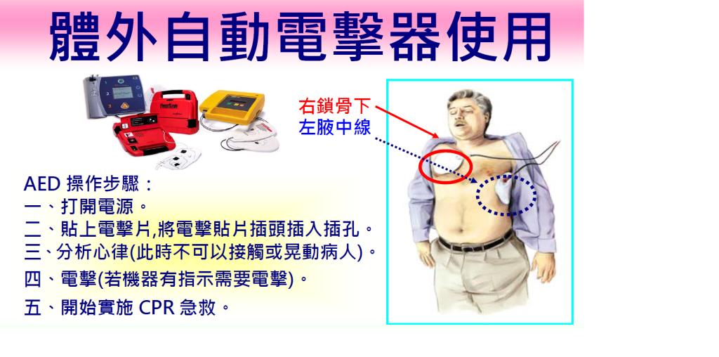 自動體外心臟電擊去顫器AED操作步驟圖說明如上面文字所述